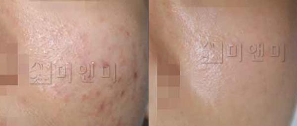 셀라스+MTS 피부재생